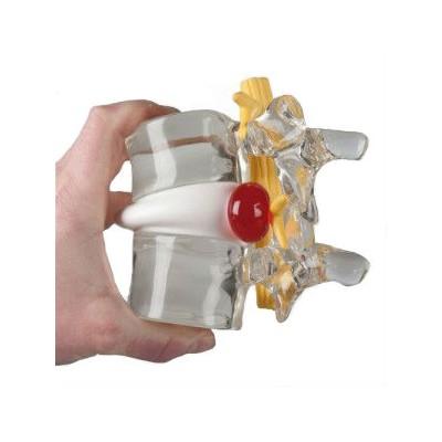 Πρόπλασμα - Κήλη μεσοσπονδύλιου δίσκου