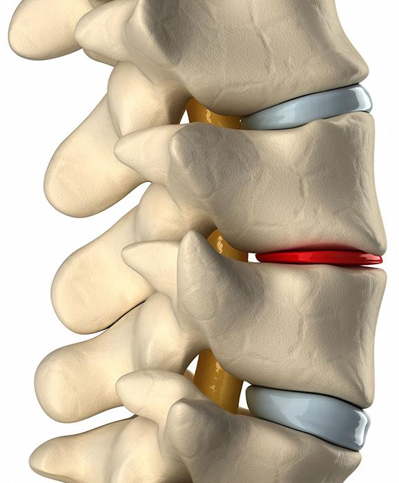 Πότε ένας εκφυλισμένος μεσοσπονδύλιος δίσκος μπορεί να προκαλέσει πόνο;